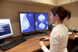 image of mammography  - Female radiology technician examens mammography test on computer - JPG