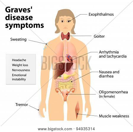 Graves' Disease Or Basedow Disease. Symptoms And Signs