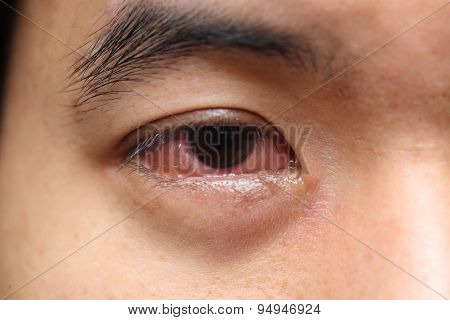 red sore allergy eye