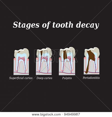 Stages of development of dental caries. Vector illustration on a black background