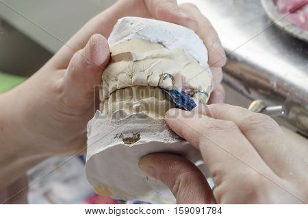 Dental Technician Doing Partial Dentures Of Acrylic Resins.