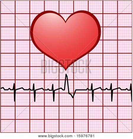 heart ekg