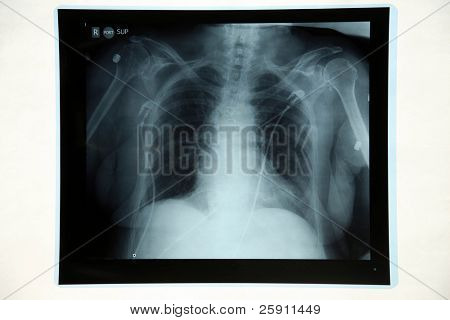 "a doctor examins an ""X-Ray"""