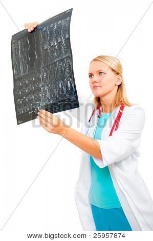 Young doctor examining an x-ray image of the spine