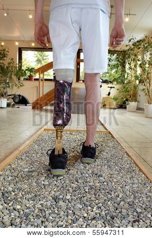 Male Prosthesis Wearer Training To Walk