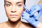 stock photo of fill  - Portrait of a white woman during surgery filling facial wrinkles - JPG