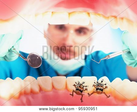 Patient with caries germs