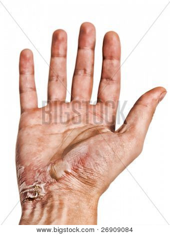 Old burned hand