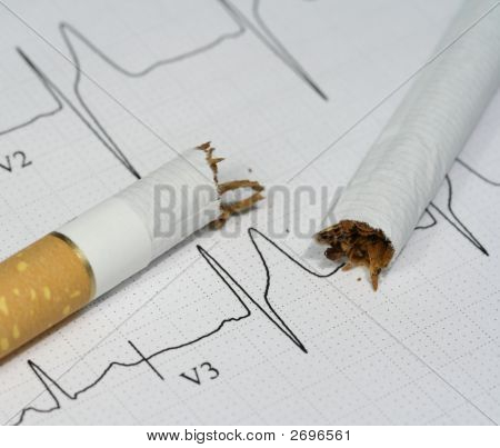 Cigarette And Pulse Trace