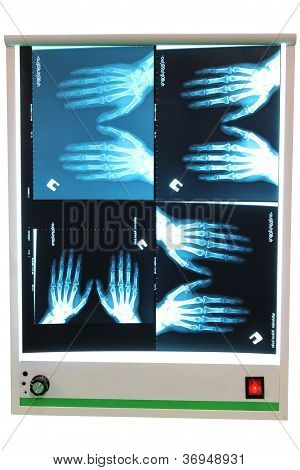 X-Ray Foto