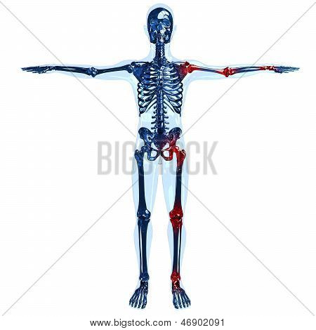 Full Human Skeleton 3D Concept With Joint Pain On Left Side