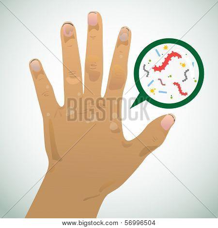 Dirty Hand2