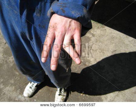 Broken/dislocated finger