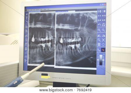 Radiografías de trabajo Dental en los dientes