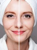 happy woman after beauty treatment - before/after shots - skin care, anti-aging procedures, rejuvena poster