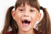 stock photo of edentate  - Cheerful cute girl with teeth dropped out - JPG