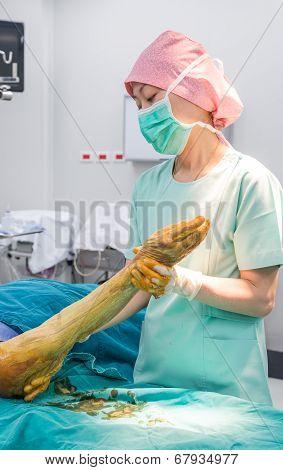Scrub Nurse Use Cleaning Solution Paint All Forearm And Arm Prepare For Operation