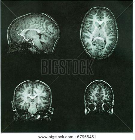 Brain Scan of a pre-teen child's brain