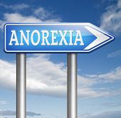 foto of anorexia nervosa  - anorexia nervosa eating disorder with under weight as symptoms needs prevention and treatment is caused by extreme dieting - JPG