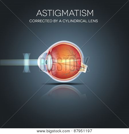 Astigmatism Corrected