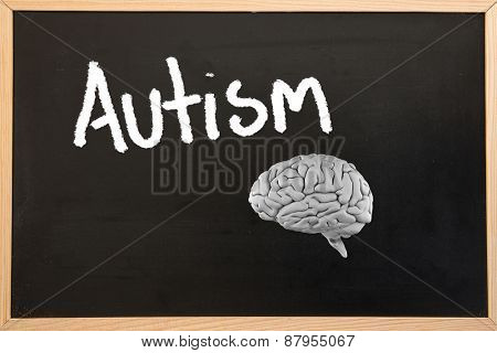 brain against blackboard with copy space
