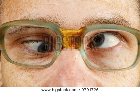 Cross-eyed Person In Old-fashioned Spectacles