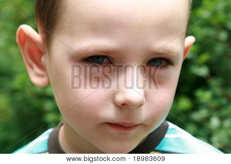 Boy with allergy, conjunctivitis and black rings round his eyes.