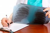 stock photo of radiograph  - Doctor describes radiograph patient isolated on white - JPG