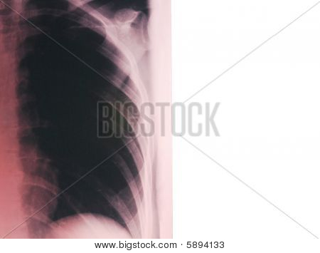 Lungs radiogram