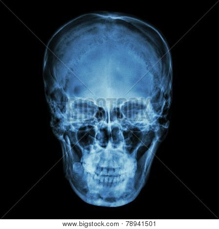 X-ray Normal Asian Skull (thai People)
