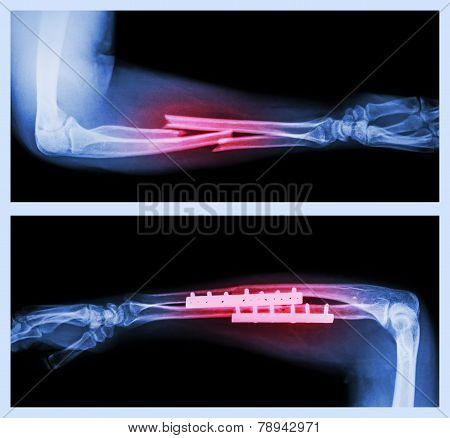 Fracture ulnar and radius