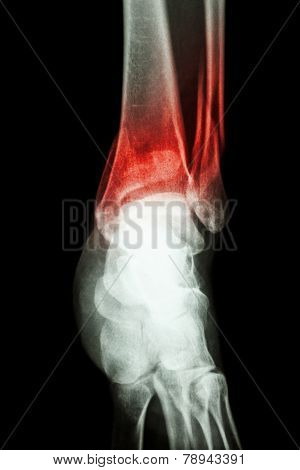 Fracture Distal Tibia And Fibula (leg's Bone)
