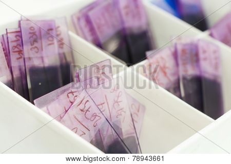 Peripheral Blood Smear (pbs)