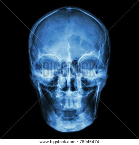X-ray human's skull with isolated background .