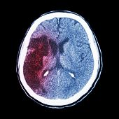 foto of hemorrhage  - CT brain  - JPG