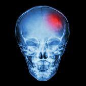 picture of cranium  - X - JPG