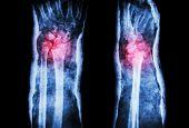 stock photo of fracture  - fracture distal radius  - JPG