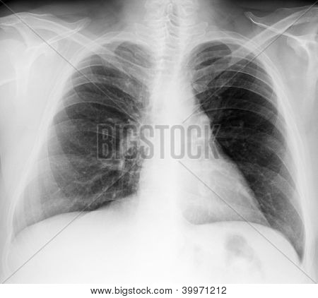 Male chest x-ray on black background