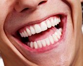 stock photo of human teeth  - Close up shot of awesome healthy teeth smile over white background - JPG