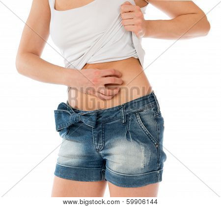 Young Woman Allergy Scratching Her Abdomen Stomach With Fingers