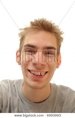 Teen Laughing With Braces