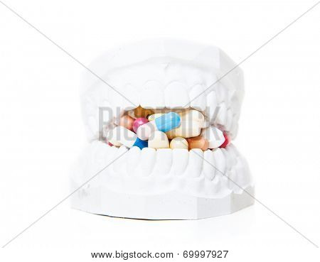 Plaster cast of teeth full of pharmaceuticals