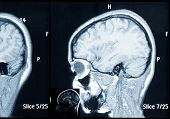 stock photo of mri  - Real brain MRI slide of a young woman - JPG