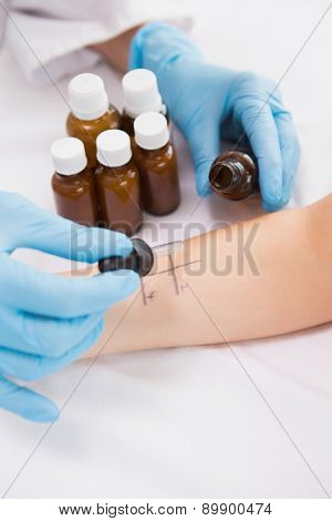 Doctor doing skin prick test at his patient in medical center
